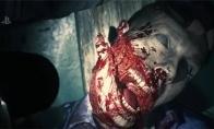 《生化危机2:重制版》丧尸详细生命值及伤害抗性一览-单机攻略